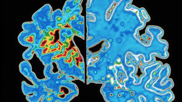 Sección de un cerebro con Alzheimer vs uno normal. Copyright: Alfred Pasieka/Science Photo Library